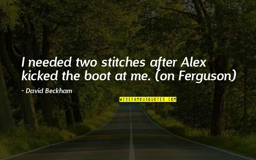 Alex Ferguson Quotes By David Beckham: I needed two stitches after Alex kicked the