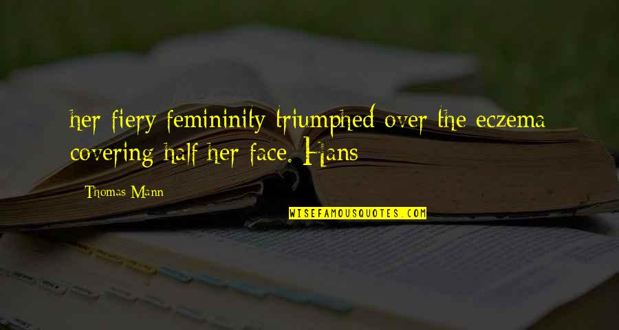 Covering Up Your Face Quotes By Thomas Mann: her fiery femininity triumphed over the eczema covering