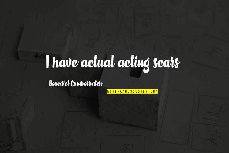 Eurasian Quotes By Benedict Cumberbatch: I have actual acting scars.