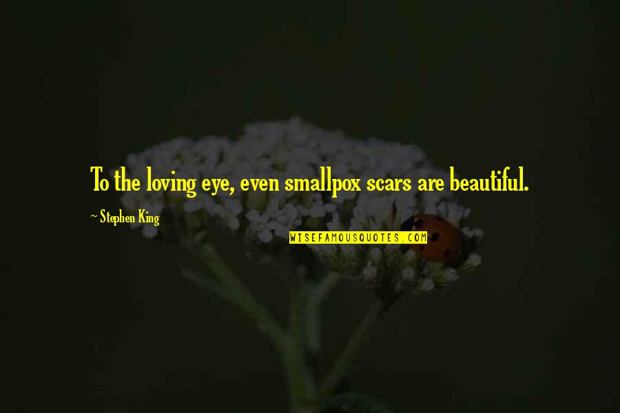 Hillsborough Tragedy Quotes By Stephen King: To the loving eye, even smallpox scars are