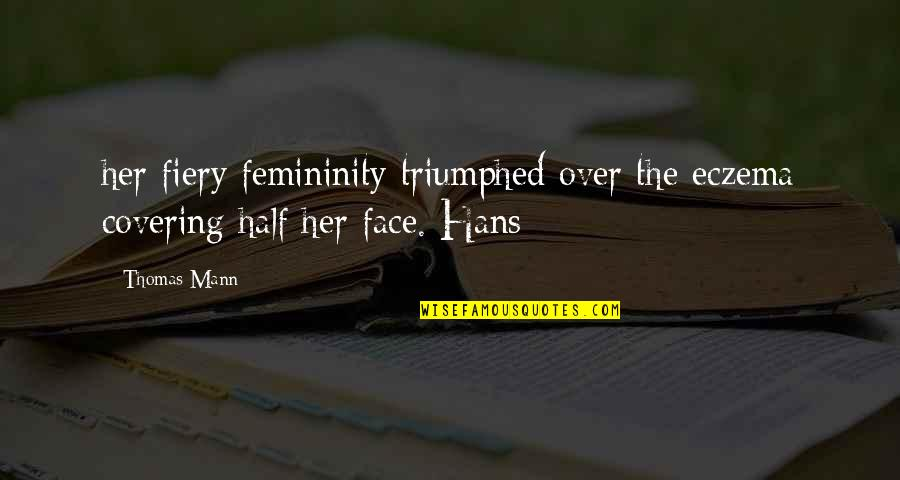 John Radcliffe Quotes By Thomas Mann: her fiery femininity triumphed over the eczema covering