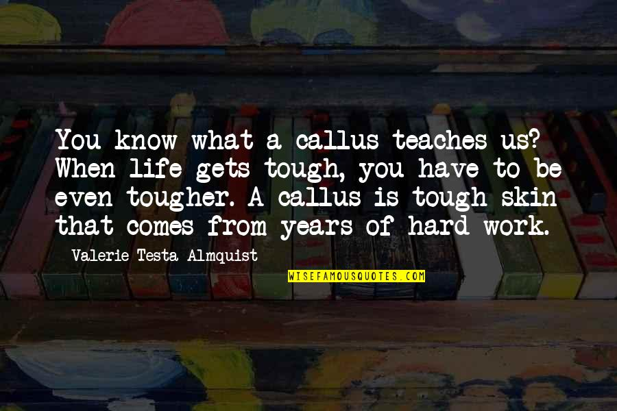 Life Gets Too Hard Quotes By Valerie Testa Almquist: You know what a callus teaches us? When