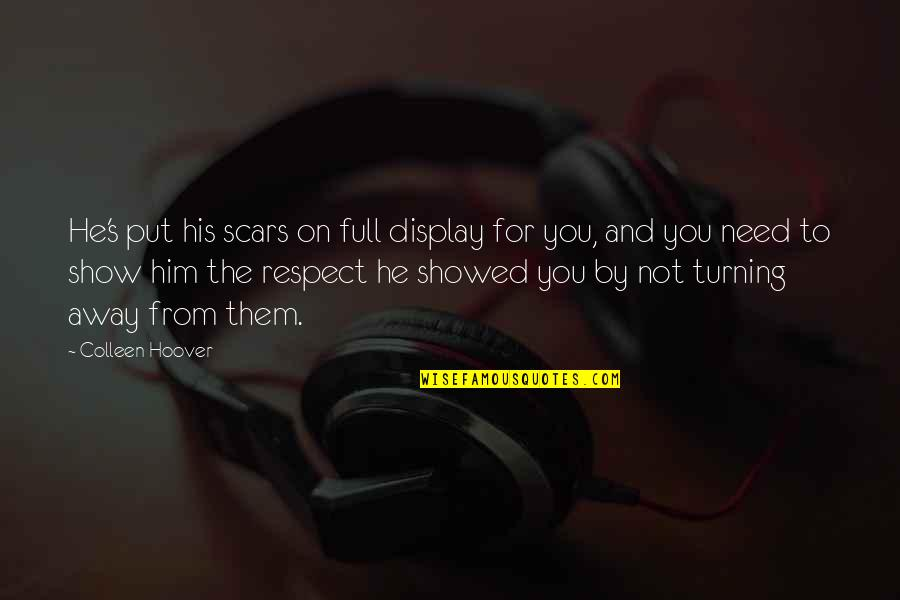 Turning Him On Quotes By Colleen Hoover: He's put his scars on full display for